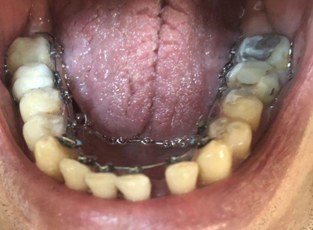 ankara ortodonti hasta